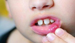 Aftózna stomatitída u detí: aké sú príznaky a liečba