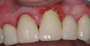 Ako môžem liečiť zápaly dásní doma?