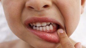 Zápal ďasien. Príznaky infekcie u dospelých a detí a spôsoby liečby