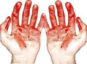 Čo snívajú ruky v krvi: výklad spánku