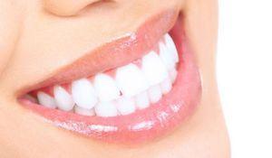 Ako bielych zubov doma?