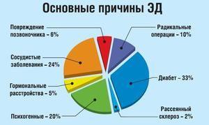 Možné príčiny slabšej erekcie - vizuálny diagram
