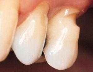 Cuneoidné zubné chyby: príčiny, symptómy a liečba