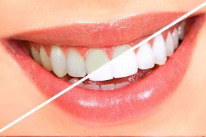 Bielenie zubov s peroxidom vodíka doma