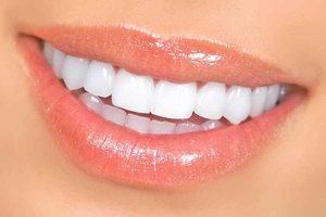 Bielenie zubov s opalescenčným systémom doma