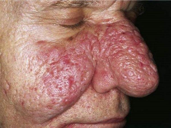 Popis demodekózy v nosovej časti hypertrofickej fázy