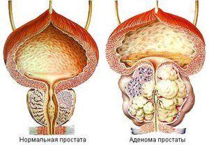 Veľkosť prostaty u mužov - čo je normou?