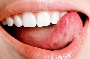 Choroby jazyka