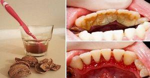 Odstránenie zubného kamene doma