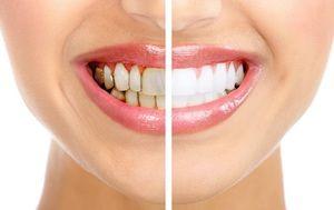 Eliminácia zubného povlaku doma: metódy a odporúčania