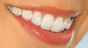 Zubový systém: vlastnosti systémov a ich inštalácia